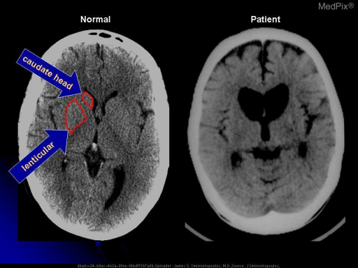 There is bilateral symmetric atrophy of the caudate nucleus with compensatory enlargement of both frontal horns of the lateral ventricles.  Normally, the caudate nucleus - especially the head - produces a convex bulge into the lateral border of the later ventricles.  In this case, the lateral margins are bowed outward (lateral) due to caudate atrophy.
