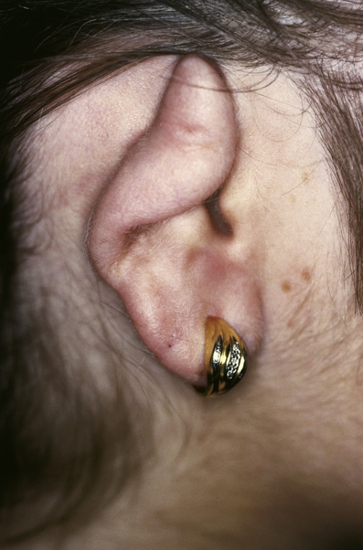 Polychondritis recidivans. Visible deformity of the ears cartilage, resulting from recurrent chondritis.
