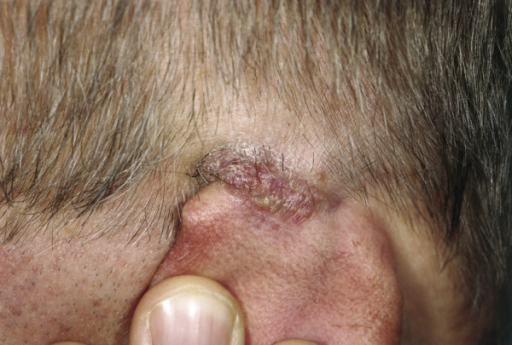 Ganuloma Fissuratum. Skin colored to light red, tender mass of granulation tissue behind the auricle with an exophytic, elliptic growth pattern and a central notch.
