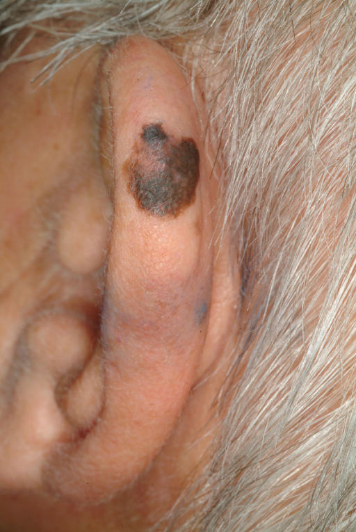Lentigo maligna melanoma. Irregular pigmented and bordered, brown to black macule with visible bright to reddish regression zone.