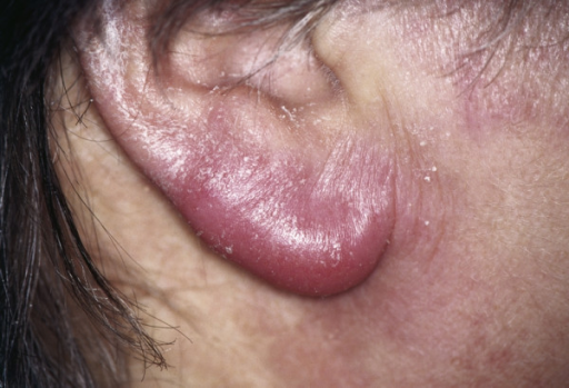 Lymphocytoma. Visible intensely red-violet swelling of the right earlobe.