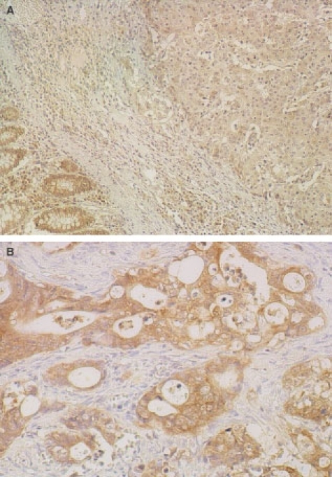 Representative results of Fhit immunostaining in human normal and carcinomatous colorectal tissues. (A), Reduced immunostaining of a tumour and positive immunostaining of normal colonic epithelium; (B), Positive immunostaining of an invasive tumour