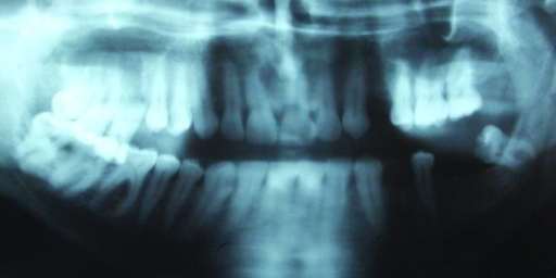 f2-0010256:Maxillary Tuberosity Fracture Associated with ...