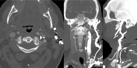 Axial (A), coronal (B) and sagittal (C) computed tomography reformatted views of soft tissue of the neck, showing contrast flow cephalad into the left internal (white arrowheads) and external jugular veins (black arrowheads) during a left upper extremity contrast injection for a head and neck computed tomography angiogram (white arrowheads: internal jugular, black arrowheads: external jugular).