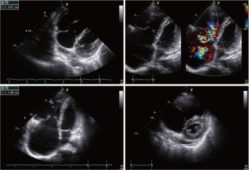 Transthoracic Echocardiography Ebsteins Anomaly The Open I