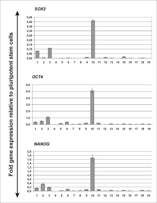 Gene expression of SOX2, NANOG and OCT4 in different tumor samples shows clustering of embryonic factors in certain tumors. Real-time PCR for SOX2, NANOG and OCT4 was performed on isolated RNA from tumor tissue. RNA from undifferentiated human pluripotent stem cells was used as a control. Shown are fold relative gene expression levels in comparison to undifferentiated pluripotent stem cells. Experiments have been performed in triplicates: error bars depict standard deviations.