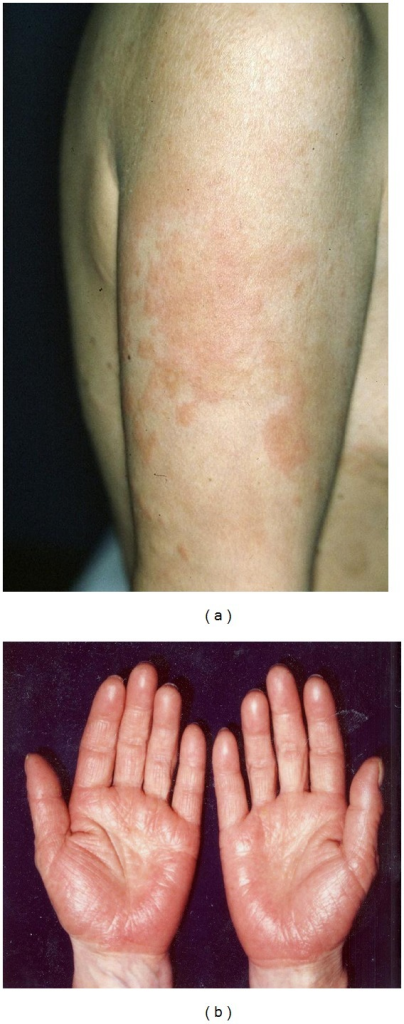 (a) A 49-year-old Japanese female with a diffuse edematous erythema with papules over her entire body. (b) The oral challenge test with zinc sulfate caused exacerbation of the preexisting eruptions on her palms, including itching edematous erythema.