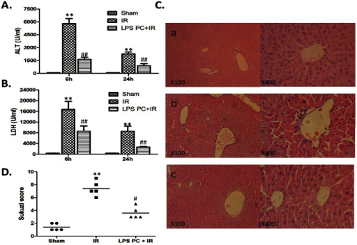 Attenuating liver IRI through low-dosage LPS preconditioning.Mice were subjected to 90 mim of partial liver ischemia, followed by 6 h and 24 h reperfusion. (A) and (B) Hepatocellular function evaluated by ALT (U/L) and LDH (U/L). Mean±SD, **P<0.001 versus sham group; ##P<0.001 versus IR group. (C) Histopathalogic analysis of livers harvested 6 hours after reperfusion: (a) Sham group: Normal hepatic architecture; (b) IR group: severe hepatic lobule distortion, sinusoidal congestion, apparent edema, vacuolization and massive necrosis; (c) LPS PC+IR group: mild vacuolization, punctate necrosis and edeman. (D) The severity of liver IRI by Suzuki's histological grading.