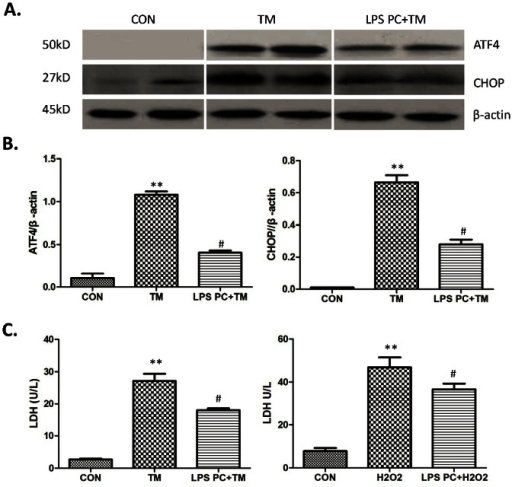 ATF4-CHOP pathway inhibited by low-dose LPS preconditioning in hepatocytes.(A) Western-assisted analysis of ATF4, CHOP and β-Actin. Representative of three experiments. (B) Relative quantities of protein of ATF4 and CHOP to β-Actin, Mean±SD, **P<0.001 versus sham group; #P<0.05 versus IR group. (C)The released LDH level of hepatocytes after TM or H2O2 treatment, Mean±SD, **P<0.001 versus sham group; #P<0.05 versus IR group.