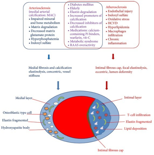 Risk factors associated with medial arterial calcification (MAC) versus atherosclerosis in CKD (above). Simplified histopathology pictures of the MAC and atherosclerotic calcification (below). Disordered mineral metabolism in CKD with its associated characteristics of hyperphosphatemia, hypercalcemia, and renal osteodystrophy, as well as vitamin D perturbation and klotho deficiency, increases the risk for MAC. Oxidative stress and chronic inflammation in uremia also accelerate atherosclerosis. A number of risk factors can drive both pathologies. Both atherosclerotic calcification and medial calcification stiffen arterial conduit vessels, impairing heart function. The eccentric remodeling of atherosclerotic calcification also reduces lumen diameter and predisposes to acute thrombosis.