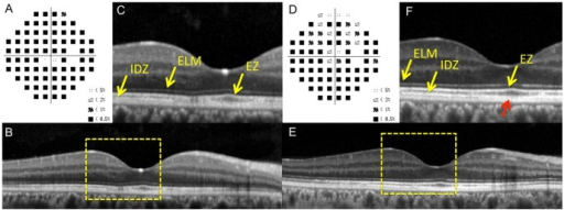 Static visual field and spectral-domain optical coherence tomographic (SD-OCT) results in the right eye of Case 2 at the initial visit (A–C) and six months after the initial visit (D–F).A: Deviation plot obtained with the Humphrey 30-2 program at the initial visit. B: Horizontal SD-OCT image through the fovea at the initial visit. C: Magnified view of the area outlined by dashed yellow line box in the image of B. D: Deviation plot obtained by the Humphrey 30-2 program at six months after the initial visit. E: Horizontal SD-OCT image through the fovea at six months after the initial visit. F: Magnified view of the area outlined by dashed yellow line box in the image of B. The COST line is still blurred near the fovea (red arrow). ELM, external limiting membrane. EZ, ellipsoid zone. IDZ, interdigitation zone.