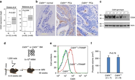 Cd24 in non-haematopoietic cells contributes to tumour growth.(a) Overexpression of CD24 mRNA in human prostate cancer tissue based on analysis of two data cohort deposited in Oncomine.com. Two reported cohorts with a sufficient number of matched cancer and normal tissue were analysed. P-values were calculated by Student's t-tests6970. (b) Expression of Cd24 in Cd24+/+ PCa but not Cd24−/− PCa or normal Cd24+/+ prostate epithelia. Data shown are representative images and have been reproduced three times. (c) Cd24 levels in TRAMP prostate are gene-dose dependent. Age-matched Cd24+/+ and Cd24+/− prostate were analysed for Cd24 levels by western blot. (d) Diagram of experimental design. Eight-week-old Cd24+/+ TRAMP mice were lethally irradiated and transplanted with 5 × 106 bone marrow cells at 1 day after irradiation. The prostate size was measured by MRI at 30 weeks of age. (e) Successful replacement of haematopoietic cells from the donor bone marrow based on Cd24 expression. (f) Means and s.d. of the prostate volume in the bone marrow chimera mice.