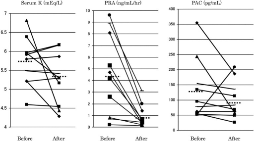 Changes of serum K, PRA and PAC after administration of aliskiren. Only PRA wassignificantly reduced. PAC was rather elevated in 2 patients.