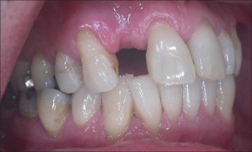 Pre-treatment clinical view, missing of maxillary right lateral incisor