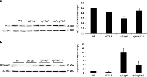 Increased protein expression of anti-apoptotic BCL-2 and decreased protein expression of pro-apoptotic Caspase 3 following Losartan treatment. (a) Representative western blot gel and densitometry graph of BCL-2 expression in WT and dy2J/dy2J mice. A significantly higher BCL-2 protein expression level was noted in treated compared with untreated dy2J/dy2J mice (*P<0.01). (b) Representative western blot gel and densitometry graph of Caspase-3 expression in WT and dy2J/dy2J mice. A significantly lower Caspase-3 protein expression level was noted in treated compared with untreated dy2J/dy2J mice (*P<0.0001). Results of BCL-2 and Caspase-3 levels were obtained from densitometric analysis and expressed as ratio of BCL-2 and Caspase-3 to GAPDH and as change fold over control (WT group). These results represent three independent experiments. Each bar represents the mean±S.E.M. of 12 mice for BCL-2 (*P<0.01) and 12 mice for Caspase-3 (*/**P<0.0001)