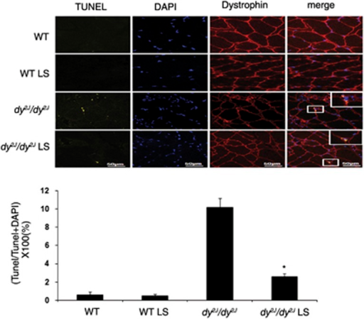 Losartan decreased apoptosis in dy2J/dy2J mice muscle. Expression of apoptosis was analyzed using TUNEL assay with an In Situ Cell Death Detection Kit. TUNEL-positive cells were stained in yellow. Dystrophin, as muscle marker, was analyzed using anti-Alexa-647 antibody (red), and DAPI staining (blue) was used as nuclear staining. The quadriceps muscle of Losartan-treated dy2J/dy2J mice showed significant reduction in TUNEL-positive cells compare with the untreated mice. Almost no TUNEL-positive cells were illustrated in untreated and treated WT groups. Scale bar, 50 μm. Each bar represents the mean±S.E.M. of five fields per mice of six mice in the WT groups and seven mice in the dy2J/dy2J groups (*P<0.0001)