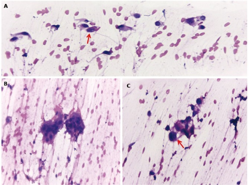Fine needle aspiration cytology of the hand mass revealed mononuclear stromal cells with slight spindling (A) admixed with osteoclast giant cells (B). The stromal cells showed occasional grooving (arrow) (A) and intracytoplasmic vacuoles (arrow) (C) (Hematoxylin and Eosin staining 400×).
