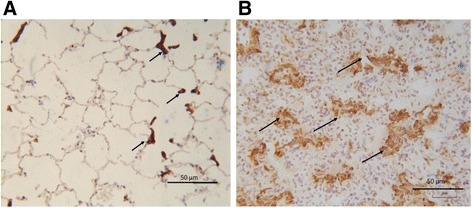 Myofibroblasts in bleomycin treated lung. Representative images of αSMA immunostaining seen in: saline-treated control lung segments (a), showing localization predominantly around the interstitial space of alveolar duct (arrowheads). In bleomycin-treated segments (b) αSMA positive cells were observed in remodelled fibrotic alveolar and formed organised bundles (arrows)