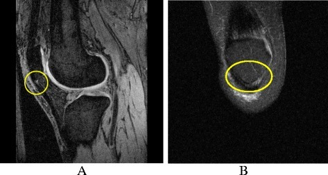 Patellar tendinopathy on MRI. a Sagittal T1-weighted fat-saturated image showing patellar tendinopathy. b Coronal T2-weighted fat-saturated image showing patellar tendinopathy