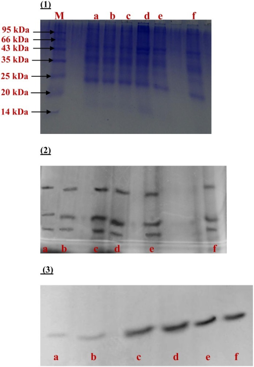 SDS–PAGE analysis of (1) The protein profile, (2) SOD activity, and (3) CAT activity in the root extracts of wheat treated for 8 h. In all the figures, a: control; b: 100 μM SNP; c: 50 μM Pb; d: 250 μM Pb; e: 250 μM Pb +SNP; f: 50 μM Pb +SNP.