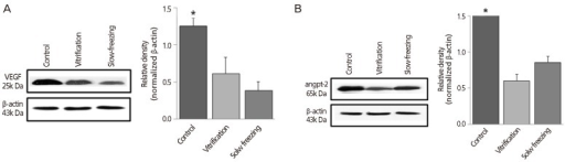 Western blot analysis: quantitative analysis by group of (A) vascular endothelial growth factor (VEGF) and (B) angiopoietin-2 (angpt-2) after 1 week of vitrification or slow freezing (no cryopreservation of controls). β-actin was used as internal standard. Data were expressed as mean±standard error of three independent experiments. *P<0.05 vs. cryopreservation groups (vitrification and slow freezing).