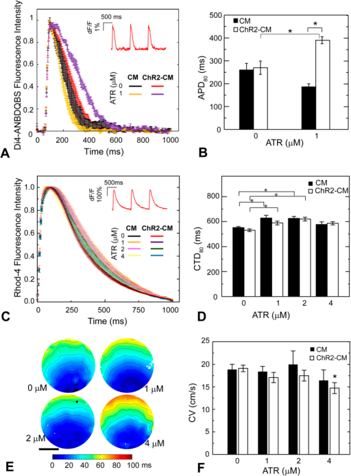 ATR effects on cardiomyocyte electrophysiology.(A) Action potentials in response to electrical pacing were imaged optically (using di4-ANBDQBS) and presented as mean ± SEM at each point for each group. (B) Quantified APD80 for control CM and ChR2-CM without ATR and with 1 μM ATR (highest optical excitability). Both A and B had n = 3–4 samples per experimental group. (C) Calcium transients in response to electrical pacing were imaged optically (using Rhod4-AM) and presented as mean ± SEM at each point for each group. (D) Quantified CTD80 for control CM and ChR2-CM at different ATR supplements. Both C and D had n = 7–33 samples for each of the eight experimental groups. (E) Example activation maps of ChR2-CM, following point electrical stimulation at the bottom; isochrones are 10 ms apart. Scale bar is 5 mm. (F) Quantified conduction velocity from the activation maps (n = 7–14 per group). (*) indicates significant difference at p < 0.05 compared to the respective control (zero ATR) or as indicated by the brackets.