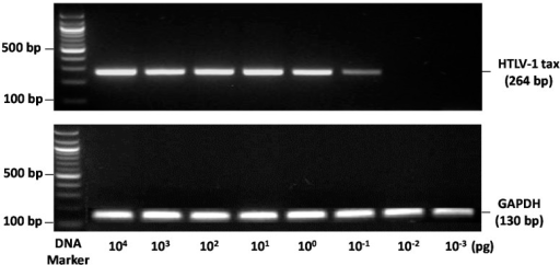 Sensitivity of human T-cell lymphotropic virus type 1 (HTLV-1) Tax PCR detection. End-point PCR method able to specifically detect a single HTLV-1 Tax DNA amplimer from 0.1 fg of input genomic DNA (DNA from the human JPX9 cell line was used as a positive control for Tax). GAPDH: glyceraldehyde 3-phosphate dehydrogenase.