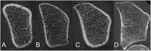 HR-pQCT of the ultradistal radius: Representative images.A) Woman with T2DM. B) Woman without T2DM. C) Man with T2DM. D) Man without T2DM.