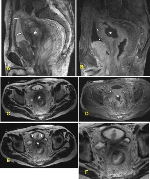 MRI of the false positive case in the group with a noncompliant protocol. A 76-year-old male with rectal cancer suspected of invasion to the urinary bladder. Imaging parameters: TR 7000; TE 132; NEX 2; thickness 5 mm; gap 1.5 mm; FOV 400 mm. (a) Sagittal T2-WI of the pelvis. The large primary lesion (asterisk) originating from the upper part of rectum with accompanying desmoplastic and edematous changes seems to be invading the muscular wall of the bladder dorsally (white arrows). The tumor appears to penetrate into the muscular layer of the urinary bladder which shows higher signal intensity compared to the normal part. (b) Sagittal contrast-enhanced T1-WI of the pelvis with fat-suppression. The posterior bladder wall is not distinguishable, yet the tumor is seen enriching ventrally (white arrowheads) and therefore, it is suspicious for penetrating into the bladder wall. (c-f) Corresponding axial images. c, e, and f are T2-WI and d is T1WI with contrast-enhancement and fat-suppression. T1-w images after Gadolinium contrast enhancement with fat saturation give the impression of the tumor (asterisk) growing into the dorsal wall of the urinary bladder (arrowheads). However, histopathological examination revealed no tumor involvement of the urinary bladder.