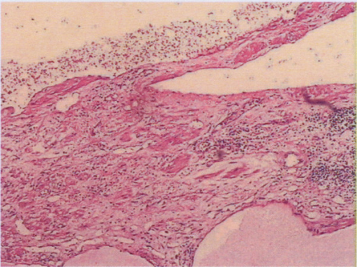 Low-power review showing a soft tissue mass consists of lymphatic and blood vessels with polycystic spaces (H & E ×100).