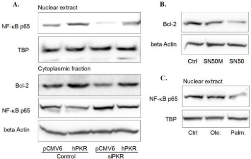 Role of PKR in regulating the Nuclear NF-κB p65 levelReverse transfection of scramble siRNA (control, the first two lanes) or siRNA of PKR (siPKR, the third and fourth lane) was performed followed by forward transfection of empty vector pCMV6-XL5 (pCMV) or the plasmid containing PKR cDNA sequence (hPKR) (A). Cells were then harvested and the nuclear extract was separated from the cytoplasmic fraction, and western blot analysis was performed to detect the level of Bcl-2 in the cytoplasmic fraction and the levels of NF-kB p65 in both the nuclear extract and the cytoplasmic fraction. TBP and beta actin were also measured as loading controls for the nuclear extracts and the cytoplasmic fraction, respectively (A). 90%-confluent HepG2 cells were exposed to a cell-permeable inhibitor of NF-kB, SN50 (18 μM), or its negative control, SN50M (18 μM), in regular media for 24 hours (B). After treatment, the cells were harvested, and western blot analysis was performed to detect the protein level of Bcl-2 in the whole cell lysates (B). 90%-confluent HepG2 cells were exposed to 0.7 mM palmitate or oleate for 24 hours (C). The vehicle for the FFAs (0.7 mM BSA) was used as the control (i.e., regular media with BSA). After treatment, the cells were harvested, and western blot analysis was performed to detect the protein level of NF-kB p65 in the nuclear extracts (C).