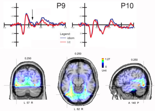 Final words. (Top) ERP recorded at left and right occipito/temporal sites as a function of sentence type. The arrows indicate the effect of sentence type on N2 amplitude over the left hemisphere. (Bottom) Coronal, axial and sagittal views of swLORETA source reconstruction computed on the difference wave idiomatic minus literal for the 270-300 ms time window. Grid spacing = 10 mm; estimated SNR = 3.