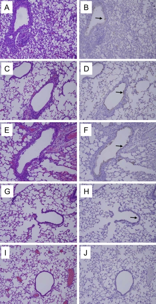 Pathology and immunohistochemistry of influenza virus-infected mouse lung tissue. Photomicrographs of hematoxylin-and-eosin-stained tissue sections and immunohistochemically stained sections for detection of influenza viral antigen from mice infected with different influenza virus constructs at day 5 postinfection (except for the VN1203RNP virus, which is shown at day 3 postinfection). Viral antigen is stained reddish brown on a hematoxylin-stained background. Arrows show examples of positive cells. (A, B) Sections from an animal infected with the S09RNP virus showing a focus of moderate alveolitis. Focal viral antigen is seen in bronchiolar epithelial cells (arrow) and in alveolar macrophages (original magnifications, ×100). (C, D) Sections from an animal infected with the S09RNP-E627K virus showing necrotizing bronchiolitis with a transmural inflammatory cell infiltrate. Viral antigen staining was observed in bronchiolar epithelial cells (arrow) and in alveolar macrophages (original magnifications, ×100). (E, F) Sections from an animal infected with the VN1203RNP virus at day 3 postinfection showing marked necrotizing bronchiolitis with a marked transmural inflammatory cell infiltrate. Prominent viral antigen staining was observed in bronchiolar epithelial cells (arrow) (original magnifications, ×100). Similar histopathological changes were observed at day 5, but only limited viral antigen staining was observed (data not shown). (G, H) Sections from an animal infected with the 1918RNP-K627E virus showing no pathological changes in the lung but some viral antigen staining in bronchiolar epithelial cells (arrow) in the absence of inflammation (original magnifications, ×100). (I, J) Sections from an animal infected with the CA09RNP-D701N virus showing no pathological changes in the lung and no viral antigen (original magnification, ×100).