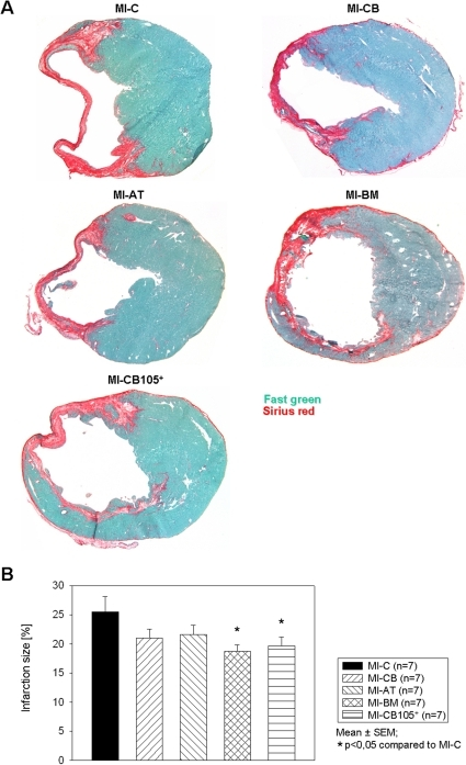 Infarction size 6 weeks after MI.A. Representative ventricular cross sections of heart level c. B. Ratio of infarction size to entire LV is significantly decreased in MI-BM and MI-CB105+ compared to MIC.