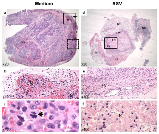 Histopathology of LNCaP xenograft prostate tumors. (a) Photograph of tumor (at 20× magnification), injected with medium shows an irregular expansible growth and compression (marked as C) of adjacent normal tissue, revascularization (marked as NV) and vascular metastasis (marked as M). (b) 100× magnification of the upper square in panel-a (solid-line boundary for the demarcated box), showing prominent vascular metastasis (M). (c) 400× magnification of the lower dashed square (demarcated by the broken-line boundary) in panel-a, showing a typical mitotic figure (see arrow). (d) Photograph (at 20X) of RSV-injected tumor. Tumor size is markedly reduced and complete necrosis of the neoplastic cells with minimal fibrovascular encapsulation and pyogranulamatous inflammation is evident. Marked necrosis at the center of the tumor is readily apparent. (e) 100× magnification and (f) 400× magnification of the solid-line square in panel-d, highlighting minimal fibrovascular encapsulation, FV (panel-e) and complete tumor necrosis, TN (panel-f). NT: normal tissue. ND: non-tumor debris.