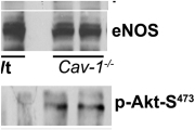 Cav-1 deficiency induces eNOS activation and AJ destabilization in endothelium. (a) Phosphorylation of eNOS at S1177 and Akt-1 at S473 in Wt and Cav-1−/− MLVECs; n = 3. Molecular mass standards are indicated next to the gel blots in kilodaltons. (b) Basal NO generation was measured in the absence or presence of l-NNA or NPA and 1400W in combination. Arrow, l-arginine replenishment. Scale bars are shown for 100 nM NO and 10 min. Bar plot, NO accumulation in a media over 20 min; mean ± SEM (error bars); *, P < 0.05 as compared with Wt control; n = 6. (c) Wt and Cav-1−/− endothelial monolayers stained for VE-cadherin, β-catenin (green in overlays), F-actin (red), and nuclei (blue). Inter-endothelial gaps in Cav-1−/− monolayers are indicated by arrowheads. Bar, 10 µm. (d and e) Accumulation of β-catenin at AJs was expressed as a mean pixel intensity of threshold area shown in d (threshold above intracellular background is in orange). (f) Area of inter-endothelial gaps was determined using the same set of images as in e; n = 17. Black circles and error bars in e and f indicate mean and SEM, respectively; *, P < 0.01 as compared with Wt control.