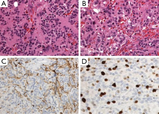 Pineal parenchymal tumor of intermediate differentiation. A. Area of tumors with uniform round nuclei and nucleus-free pineocytomatous rosettes containing fine fibrillary material. One mitosis is seen (arrow) (H&E staining, 400×); B. More cellular area with mild nuclear atypia and no rosettes (H&E staining, 400×); C. Moderate numbers of neurofilament protein expression among the tumor cells (400×); D. Several Ki-67 labeled nuclei of tumor cells (400×).