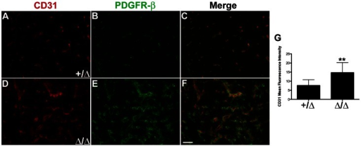 Thymus vascular patterning altered in Foxn1Δ mice.Immunofluorescence analysis on frozen sagittal sections of Foxn1+/Δ and Foxn1Δ/Δ newborn thymus for CD31+ (red) and PDGFR-β+ (green) cells in (A–C) Foxn1+/Δ and (D–F) Foxn1Δ/Δ mice. (G) Average mean fluorescence intensity for CD31 in Foxn1+/Δ (n = 8) Foxn1Δ/Δ (n = 6) thymus sections. Asterisks denote statistical significance (P<0.05). Scale bar, 50 µm; n = 3.