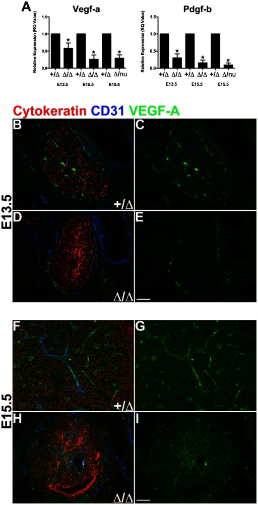 VEGF-A and PDGF-B expression reduced in Foxn1Δ/Δ thymus.(A) VEGF-A expression was significantly reduced in E13.5 Foxn1Δ/Δ(n = 4), E15.5 Foxn1Δ/Δ (n = 3), and E15.5 Foxn1Δ/nu (n = 6), compared to Foxn1+/Δ control thymi. PDGF-B expression was also reduced in E13.5 Foxn1Δ/Δ (n = 4), E15.5 Foxn1Δ/Δ (n = 3), and E15.5 Foxn1Δ/nu (n = 6), compared to Foxn1+/Δ control thymi. Experiments represent relative RNA expression of pooled thymi. Controls were set to 1. Asterisks denote statistical significance (P<0.05). (B–E) Immunofluorescence analysis of VEGF-A expression performed on frozen transverse sections of embryonic thymus for CD31+ (blue), VEGF-A (green) and Cytokeratin (red). VEGF-A expression was detected in thymic endothelium, perivascular cells, and TECs in Foxn1+/Δ and Foxn1Δ/Δ mice (B–E). VEGF-A expression was reduced in (D–E) E13.5 Foxn1Δ/Δ thymus compared to (B–C) E13.5 Foxn1+/Δ controls. Scale bar, 100 µm; n = 3 or more.