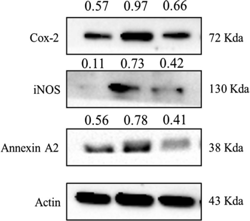 Effects of flavonoids on lipopolysaccharide induced L6 skeletal muscle cells. L6 cells were untreated or treated with the indicated concentration of LPS and flavonoids for 24 h, and COX-2, iNOS and Annexin A2 protein levels in the cell lysates were assayed by Western blot analysis. The experiments were conducted at least three replications.