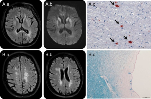 MRI and histopathologic features of CJD and MSFluid-attenuated inversion recovery (FLAIR) sequences on MRI show a symmetric hyperintensity in the caudate nucleus and putamen (A.a) and a diffusion restriction in these areas (diffusion-weighted imaging, A.b), suggestive of Creutzfeldt-Jakob disease (CJD). Histopathology (×40 magnification) in A.c demonstrates positivity of pathologic plaques highlighted by reactivity of antibodies against the prion protein antigen (arrows; prion protein monoclonal antibody [clone 12F10], Bertin Pharma, Montigny-le-Bretonneux, France). Images B.a and B.b depict typical periventricular multiple sclerosis (MS) lesions on FLAIR MRI scans and corresponding demyelination in these areas (B.c, Klüver-Barrera staining, ×10 magnification).