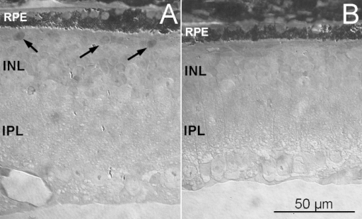 The outer retina in in EE and ST mice. Semithin (2 µm thick) plastic sections from the retinas of rd10EE (A) and rd10 ST (B) mice, obtained at similar locations. The retina in A is thicker and shows a layer of scattered cell bodies (arrows) abutting the RPE. In A and B, sparse granules of RPE pigment (visible as bright, elongated drops) penetrate the neural retina. INL = inner nuclear layer; IPL = inner plexiform layer.