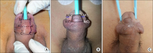 Images of the turnover flap technique: (A) preoperative, (B) 2 weeks after surgery, (C) 3 months after surgery.