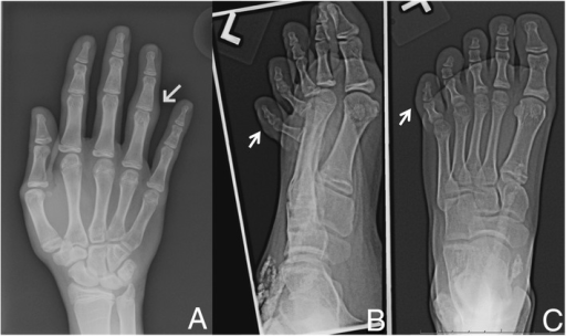Radiographic evaluation of dactylitis. A. Radiograph of right hand (dorsal view) demonstrating diffuse swelling around PIP joint of right fourth digit, indicated by arrow. B. Radiograph of left fifth toe (oblique view) and C. Radiograph of the left fifth toe (dorsal view), both illustrating soft tissue swelling of left fifth toe, indicated by arrow. Subcutaneous calcifications related to the patient's juvenile dermatomyositis are also evident.