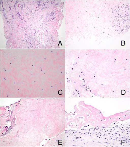 Morphologic evaluation of dactylitis. Both the affected finger and toe showed tenosynovial tissue with prominent vascularity and excess myxoid extracellular matrix (A, finger, original magnification, 100×); additionally, fibrocartilage showed a prominent myxoid component (B, toe, original magnification, 200×; C, toe, original magnification, 400×), areas of binucleation (D, toe, original magnification, 400×), and focal hypocellularity and coagulative necrosis (E, finger, original magnification, 400×). Fibrinous synovitis was also seen (F, finger, original magnification, 400×).