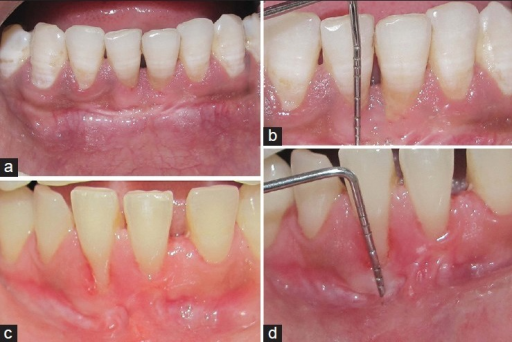 (a) Final healing at 36 months (case 1): Note the presence of increased keratinized tissue and color match. (b) Final healing at 36 months (case 2): Note the presence of enough keratinized tissue and color match. (c) 2 mm gain in the width of keratinized gingiva following soft tissue graft at 36-month follow-up (case 1). (d) A gain of 2.5 mm in the width of keratinized gingiva following gingival augmentation was recorded at 36-month follow-up (case 2)