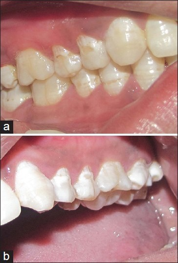 (a) Healing at donor site at 36 months: Note the normal form and harmony of gingiva with the adjacent teeth (case 1). (b) Maxillary first molar on the contralateral site: Note the comparable contour of the gingival margin (case 1)