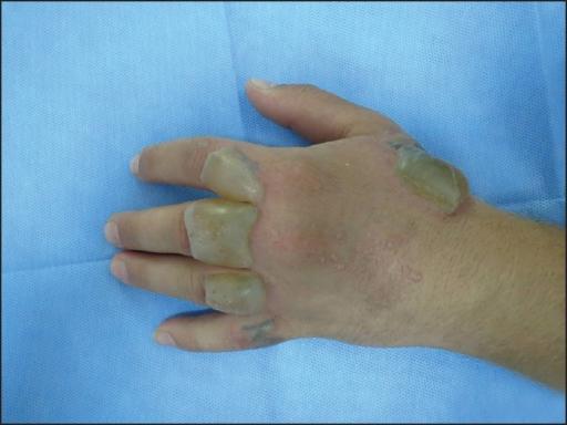 Second degree skin burn on the left hand | Open-i