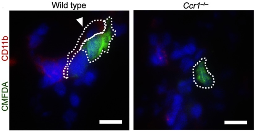 Representative fluorescence microscopy images of lung 24 hours after injection of mouse breast cancer cells. Green, CMFDA-labeled E0771-LG breast cancer cells; red, CD11b; blue, nuclei; arrow head, interaction between myeloid cells and cancer cells. Dotted line indicates the interaction between macrophage and tumor cell. Bars, 10 μm.