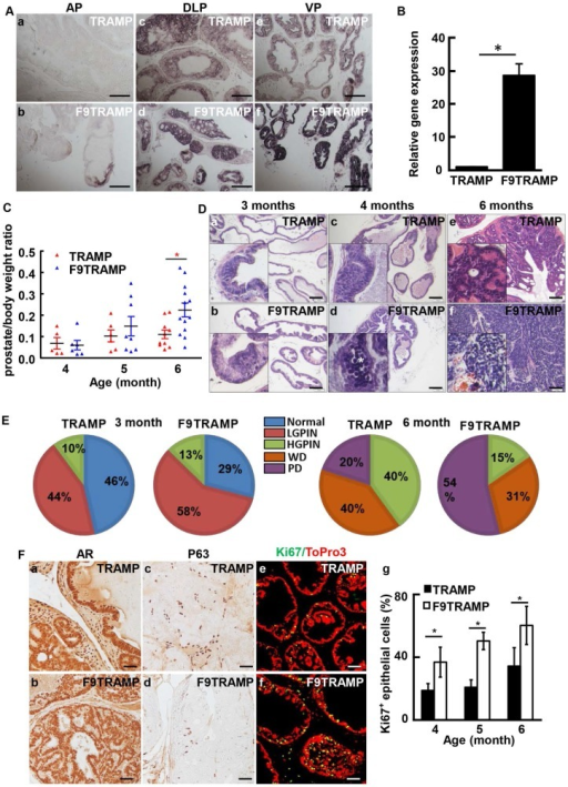 Overexpression of FGF9 in prostatic epithelial cells promotes PCa progression in mice. A.In situ hybridization showing expression of Fgf9 mRNA in mouse prostates. B. Real-time RT-PCR analyses of Fgf9 expression in TRAMP and F9TRAMP prostates at 4 months. C. Statistical analysis of prostate/body weight ratio of TRAMP and F9TRAMP prostates at the ages of 4, 5, and 6 months. D. H&E staining of TRAMP and F9TRAMP prostates at the ages of 3, 4, and 6 months. E. Quantitative analyses of prostate lesions of TRAMP and F9TRAMP mice at the age of 3 or 6 months. N=5 per group. F. Immunostaining comparing AR, P63, and Ki67 expression in TRAMP and F9TRAMP prostates. Panel g, statistical analyses of proliferating cells in TRAMP and F9TRAMP prostates at the indicated ages. Scale bars, 50 µm